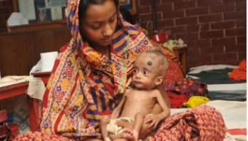 Bangladesh now part of success in malnourished children treatment