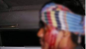 শিক্ষার্থীর মাথা ফাটালো দুই ছাত্রলীগ কর্মী