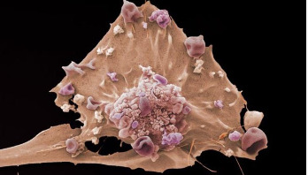 Scientists seek clues to how cancer 'is born'