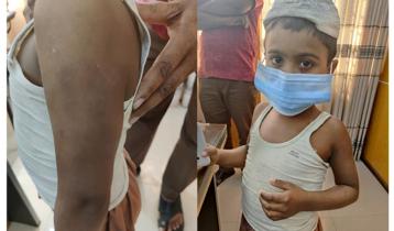 ৬ বছরের সন্তানকে বেধড়ক মার, ইউএনও'র কাছে ছুটে গেলেন মা
