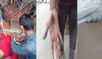 Police foils panel teachers' programme, 3 injured