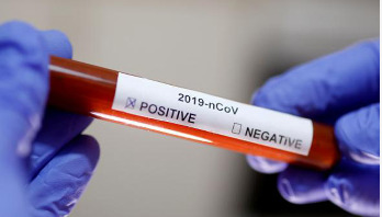 Researchers claim 20-minute blood test to detect virus