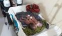 মৌলভীবাজারে জোড়া লাগা যমজ শিশুর জন্ম