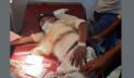 কক্সবাজারে সাবেক ছাত্রলীগ নেতাসহ দুইজন গুলিবিদ্ধ